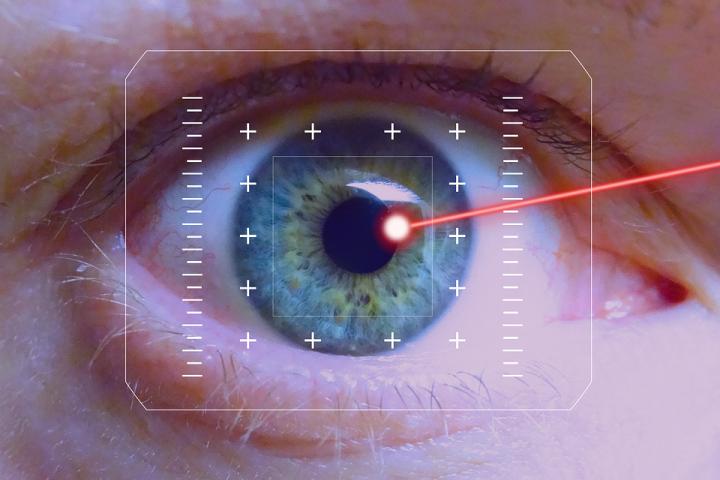 chirurgie-oeil